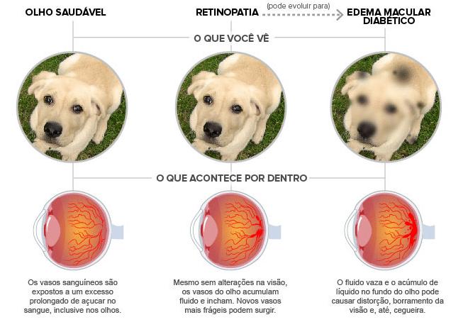 diferença retinopatia diabetica e edema macular diabético
